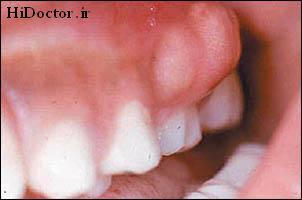 پیشگیری تا درمان آبسه دندان