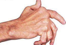 کنترل گرفتگی عروق در بیماری آرتریت روماتوئيد