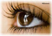 علل و درمان ریزش مژه در خانم ها