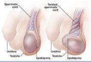 علت های درد در بیضه | درمان دردهای بیضه