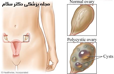تخمدان پلی کیستیک | اختلال در قاعدگی، موی زاید