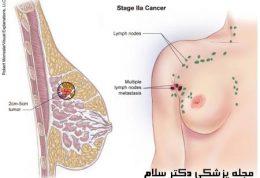 سرطان سینه و غدد لنفاوی و افزایش تومور