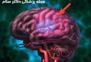 سکته خفیف مغزی | سردرد، سوزش دست و پاها