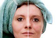 لایه برداری و از بین بردن سلول های مرده پوست