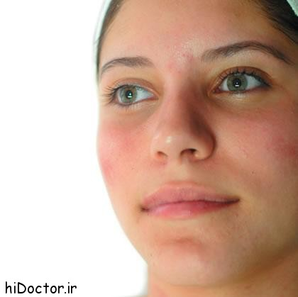 لوازم آرایشی عامل تشدید جوش های صورت