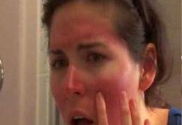 ماسک های مفید برای پوست های آفتاب سوخته