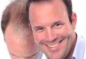 تصورات غلط درمورد کاشت مو