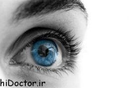 ترشحات چشم علامت چیست