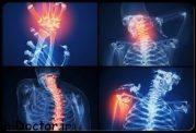 5 ماده غذایی ضد التهاب برای مفاصل