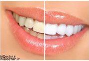 ایا میخواهید دندان سفیدی داشته باشید؟