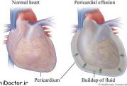درباره معالجه پريكارديال افيوژن بیشتر بدانیم