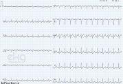 تشخیص فلاتر در نوار قلبی