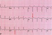 آموزش نوار قلبی برای دانشجویان پزشکی