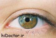 تشخیص نوع بیماری از روی چشم