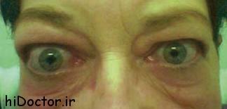 علتها و نشانه ها و روشهای درمانی تیروئید چشمی