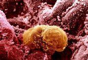 درباره سرطان پستان چقدر می دانید؟