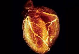 روشهایی دقیق برای بررسی رگهای اصلي قلب