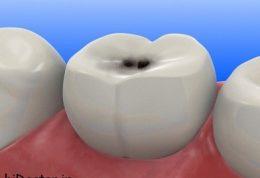 چه زمانی دندان شروع به پوسیده شدن میکند