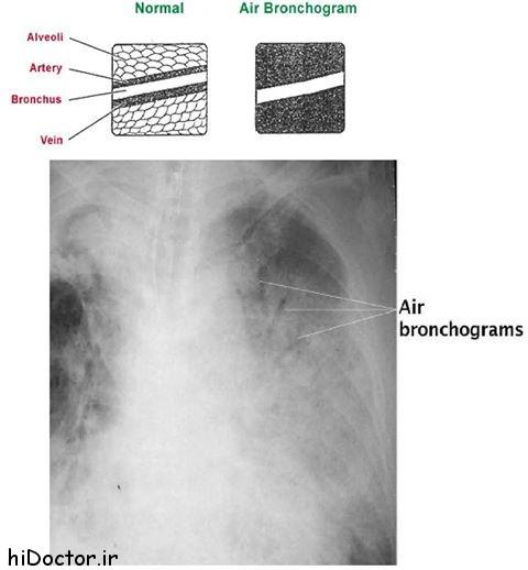 آشنایی با نمای Air Bronchogram