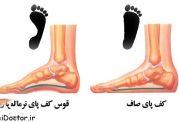 کف  پای صاف را چگونه درمان میکنند؟