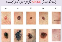 خودتان سرطان پوست را  بدون نیاز به پزشک تشخیص دهید