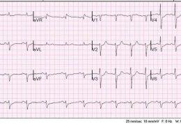 بررسی بالا رفتن ST در نوار قلب