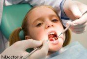 دندان شش چیست؟ اهمیت و پیشگیری از پوسیدگی دندان شش