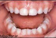سوالات شایع در مورد درمان های دندانپزشکی کودکان