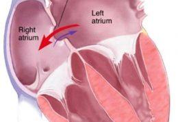 چگونه از نوار قلبی  بیماری مادرزادی ASD را تشخیص دهیم