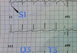 تشخیص آمبولی ریه در نوار قلبی