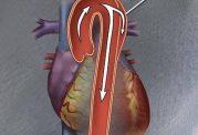 آیا سكته قلبى و  دردِ دايسكشن آئورت دارای نشانه های یکسانی هستند؟