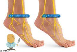 درباره نوروپاتی فشاری چه میدانید؟