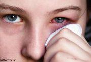 روش درمان خانگی عفونت چشم