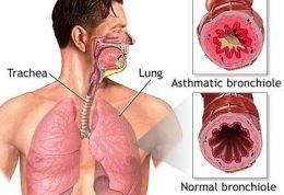 آسم چه بیماری است؟ انواع آسم و علائم آن چیست؟