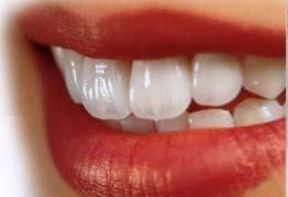آیا کاربرد فلوراید به تنهایی برای جلوگیری از پوسیدگی دندانها کافی است؟