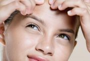 جوش(اکنه) پوست - Acne skin