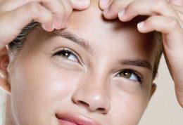 جوش(اکنه) پوست – Acne skin