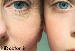چه عواملی در پیری پوست نقش دارند ؟
