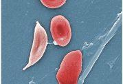 درباره  علائم و درمان بیماری سلول  داسی شکل چه میدانید
