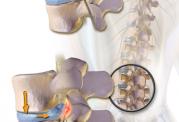 چه زمانی باید به دنبال درمان های پزشکی فوری برای درد گردن باشیم