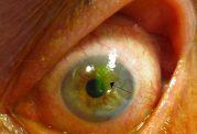 از روی چشم بیماریها تشخیص داده میشود