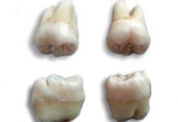 از کجا بدانیم چه زمانی باید دندان عقل را بکشیم؟