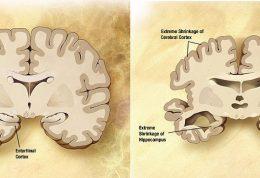 بیماری آلزایمر راباهم مرور میکنیم