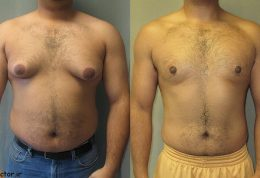 ژنیکوماستی – بزرگ شدن پستان در مرد – علل، درمان