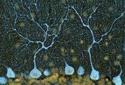 """"""" نقشه حرکت """" در مغز ،نقش سلولهای مخچه و اثر تخریبی الکل"""