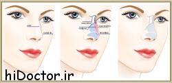 آیا از عوارض جراحی بینی آگاهی دارید ؟