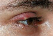 معرفی کامل بیماری چشمی گل مژه