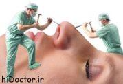 هرآنچه درباره عمل بینی بدانید