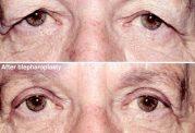 تاثیرجراحی افتادگی پلک در زیبایی چشم