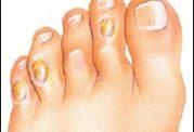 میخچه در پا و انگشتان پا - درمان